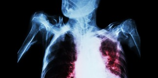 Pulmonary Tuberculosis With Acute Respiratory Failure