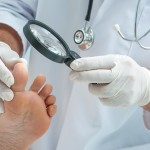 Prevent Diabetic Foot Infections to Cut the Risk of Amputation